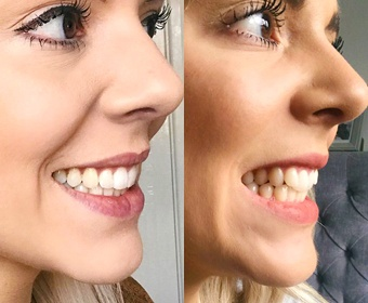 smiling woman before and after invisalign