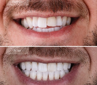 close up of man's smile before and after invisalign