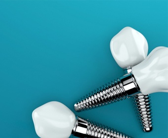 three dental implants and crowns