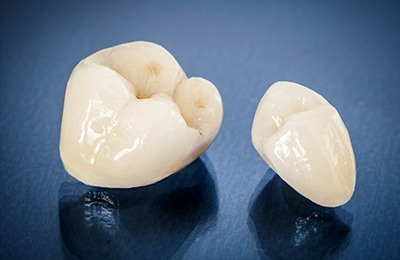 Porcelain dental crowns prior to placement