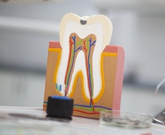 Model of the inside of the tooth