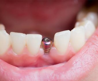 A single implant placed inside the jaw.