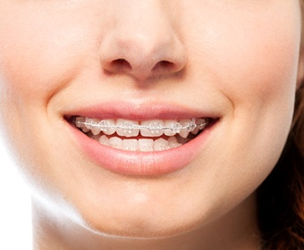 person with clear braces smiling
